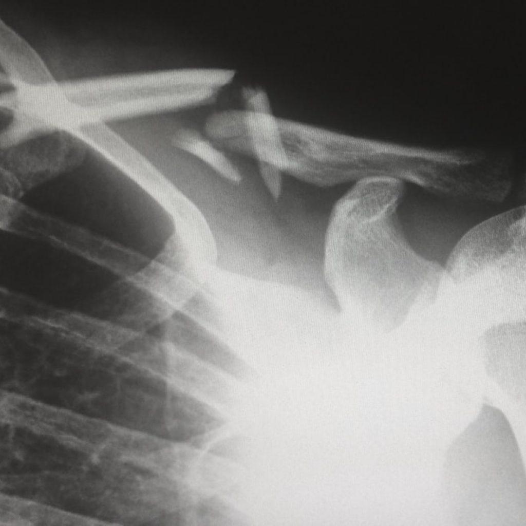 xray of a broken collar bone