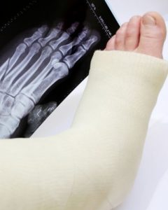 Broken Foot On The Job - Workers' Comp Lawyer