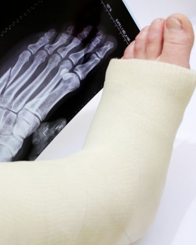 Car Crash Injury Lawyers   X-ray and foot in a cast